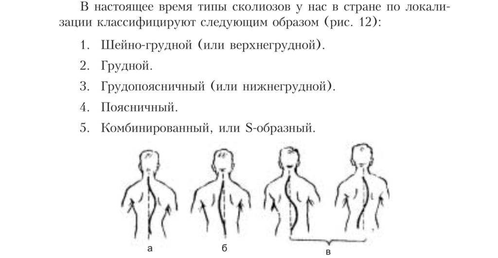 vidy-skoliozov